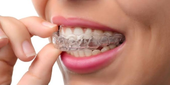 FAQs on Invisalign, the Best New Braces